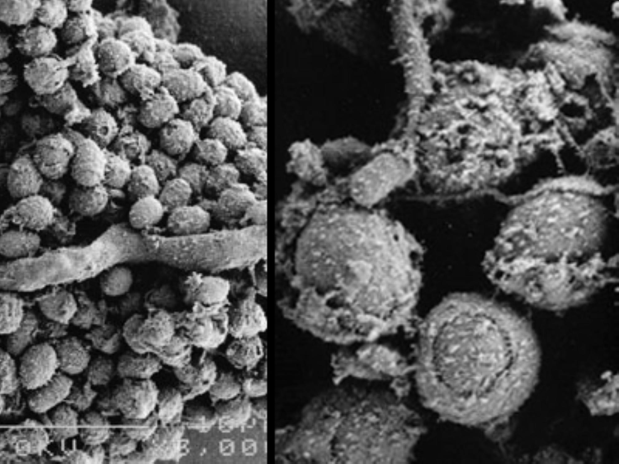 mold-fungus-image